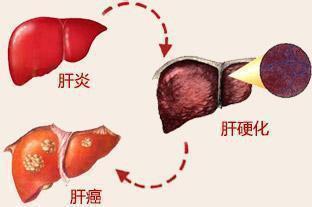 肝癌的病因有哪些?