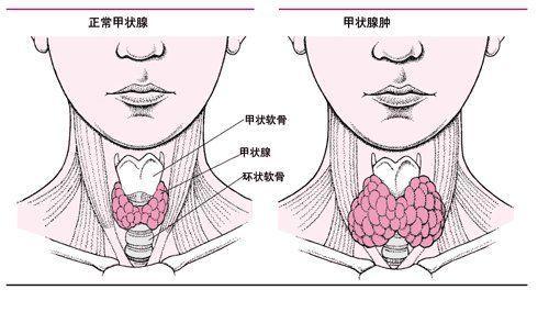甲状腺癌的治疗方法?