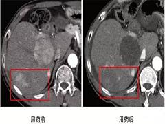 乐伐替尼有效治疗肝癌患者
