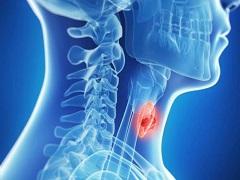 导致甲状腺癌高发的原因是什么?