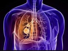 乐伐替尼联合PD-1对非小肺癌控制率达到100%
